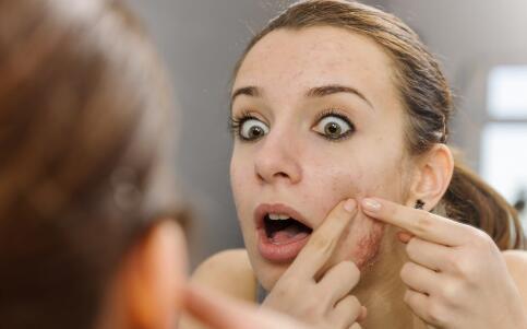 牙膏祛痘靠谱吗 祛痘偏方也不能乱用